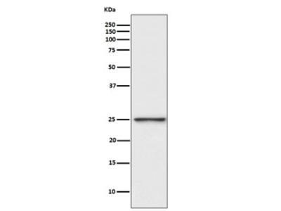 PGP9.5 / UchL1 Antibody (Rabbit Monoclonal)
