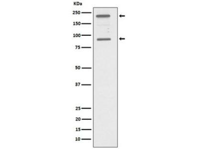 C4A Antibody / Complement C4A (Rabbit Monoclonal)