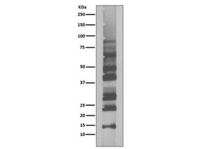 Ubiquitin Antibody / K63-Linkage Specific (Rabbit Monoclonal)