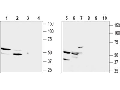 Anti-GPR91 (SUCNR1) (extracellular) Antibody