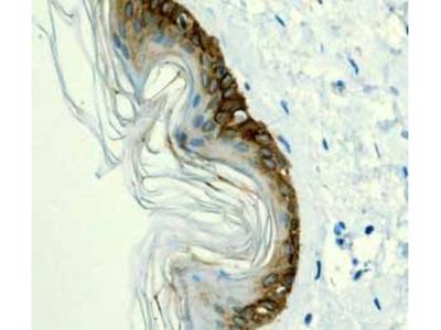 Anti-Cytokeratin 14 antibody [EPR1612]