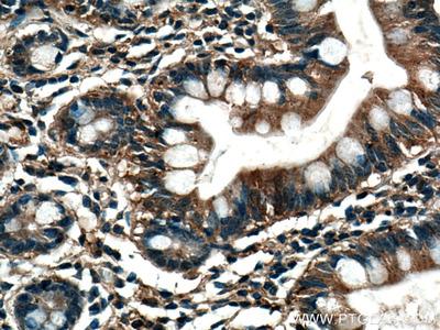 TRIM40 Monoclonal Antibody