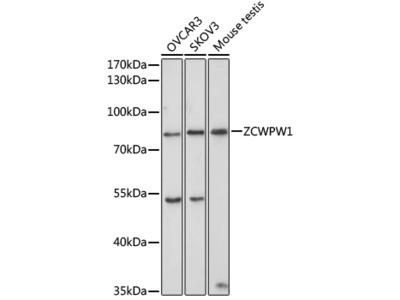 ZCWPW1 Rabbit pAb