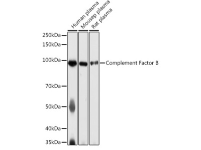 Complement Factor B Rabbit pAb