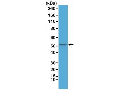 GFAP Antibody (RM246)