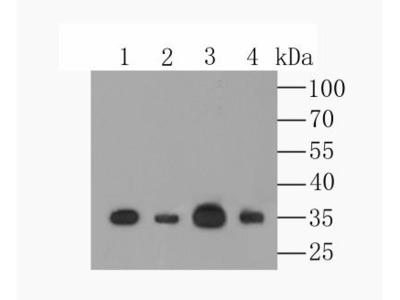 CCDC109A Antibody