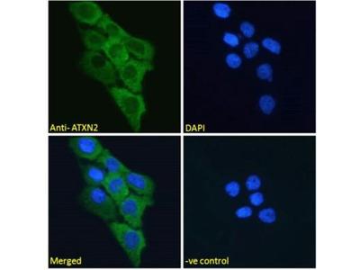 Ataxin-2 Antibody