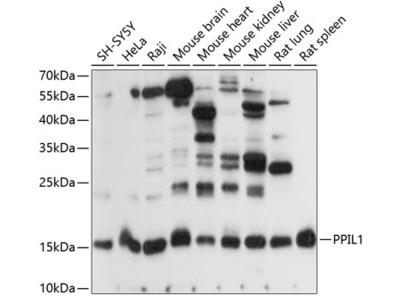 Anti-PPIL1 antibody