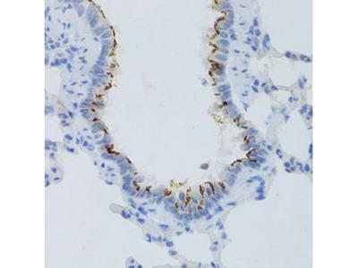 Anti-Prostaglandin E Receptor EP2 antibody