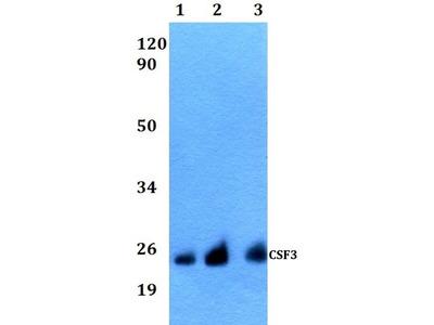 Anti-G-CSF antibody