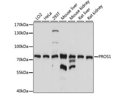 Anti-Protein S antibody