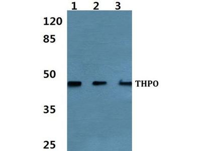 Anti-Thrombopoietin antibody