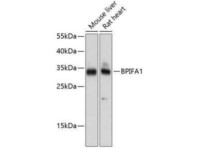 Anti-PLUNC antibody