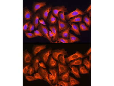 Anti-CKAP5 antibody