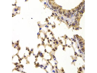 Anti-PPP2R1B antibody