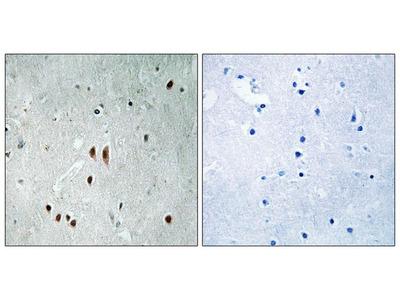 Anti-CNOT2 (phospho Ser101) antibody