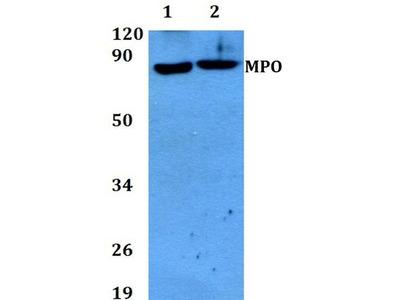 Anti-Myeloperoxidase antibody
