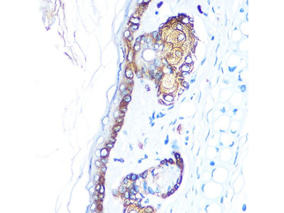 Anti-Cytokeratin 14 antibody