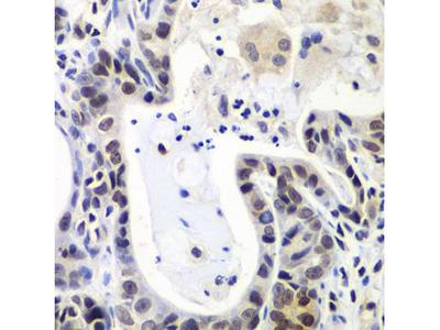 Anti-LSM2 antibody