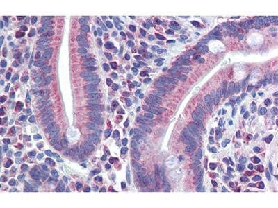 Anti-PXR antibody