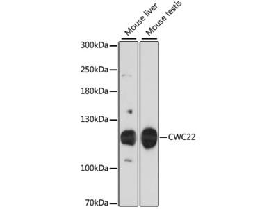 Anti-CWC22 antibody