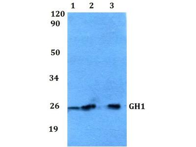 Anti-Growth Hormone antibody