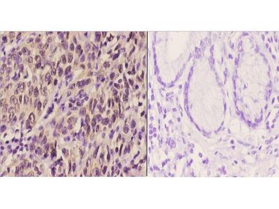 Anti-PERK antibody