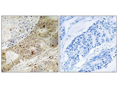 Anti-ATRIP (phospho Ser224) antibody