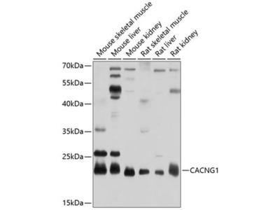 CACNG1 Polyclonal Antibody
