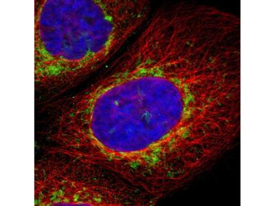 TOM70 Polyclonal Antibody