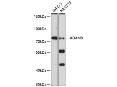 ADAM8 Polyclonal Antibody