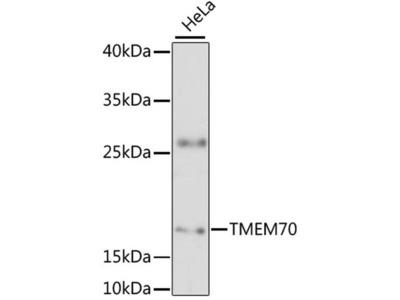 TMEM70 Polyclonal Antibody