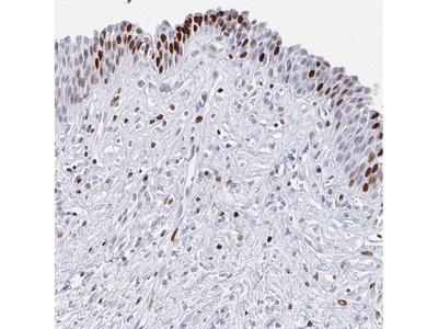SRSF3 Polyclonal Antibody
