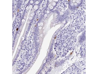 PRAMEF19 Polyclonal Antibody