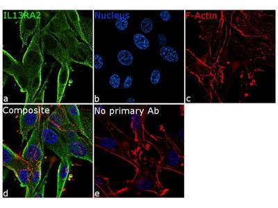 IL13RA2 Recombinant Rabbit Monoclonal Antibody (2H25L68)
