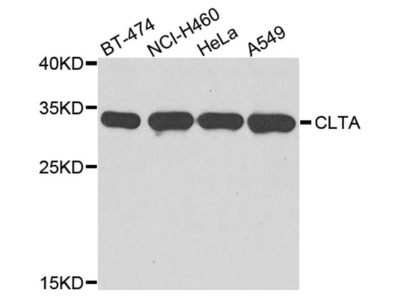 Clathrin Light Chain Polyclonal Antibody