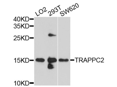 TRAPPC2 Polyclonal Antibody