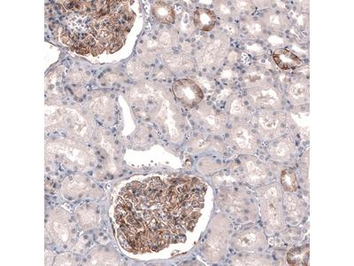 THSD7A Antibody