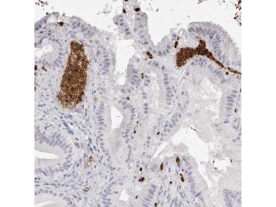 Spectrin alpha-1 Polyclonal Antibody