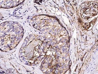 S100A10 Monoclonal Antibody (3)