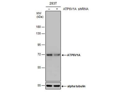 ATP6V1A Monoclonal Antibody (GT1561)