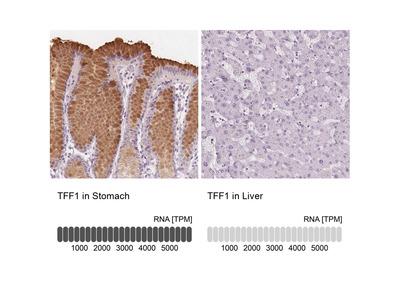 TFF1 Polyclonal Antibody