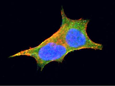 GBA3 Monoclonal Antibody (5)