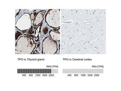 Thyroid Peroxidase Polyclonal Antibody