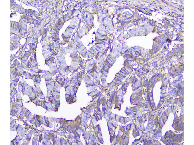 GSTM1 Monoclonal Antibody (11F2)