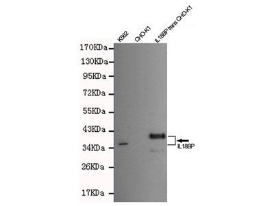 IL18BP Monoclonal Antibody (7C6)