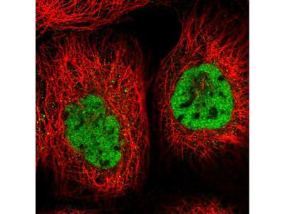 ZCCHC8 Polyclonal Antibody