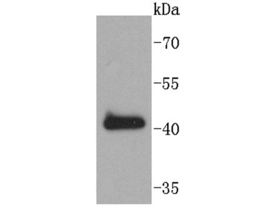 SOX18 Recombinant Rabbit Monoclonal Antibody (ST43-02)