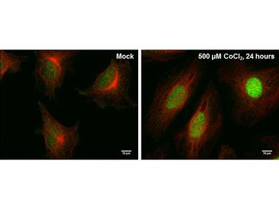 HIF-2 alpha Monoclonal Antibody (GT1689)