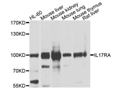 IL17RA Polyclonal Antibody